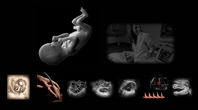 Comprehensive live hands-on OB ultrasound protocols and techniques to master women's sonography.