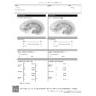 Renal Duplex Ultrasound Worksheet